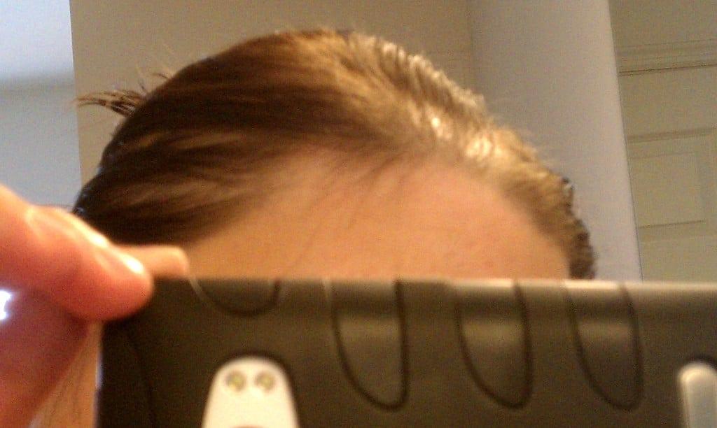 Spironolactone For Hair Loss Photo Corner Of Hope Amp Mane