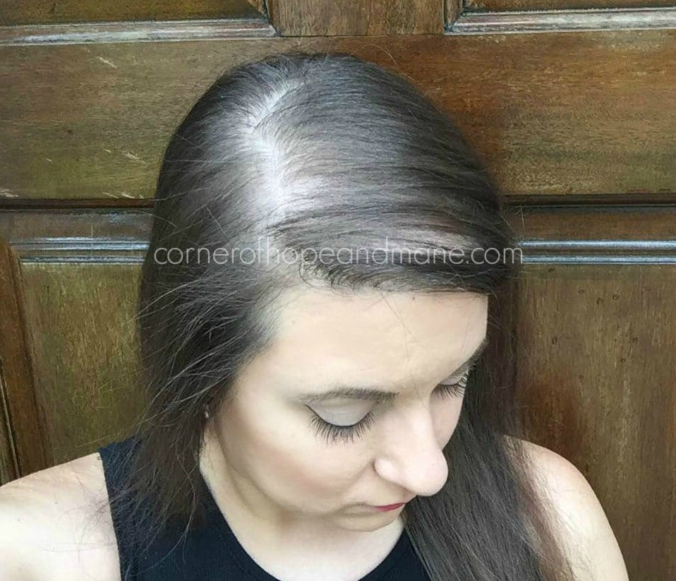 womens hair loss with wide part