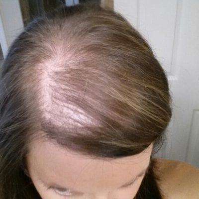 Pregnancy Hair Ain't All It's Cracked Up to Be (PHOTO)