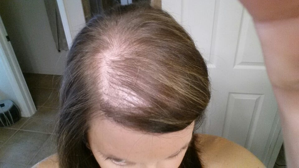 Pregnancy And Hair Loss Or Thinning Photo