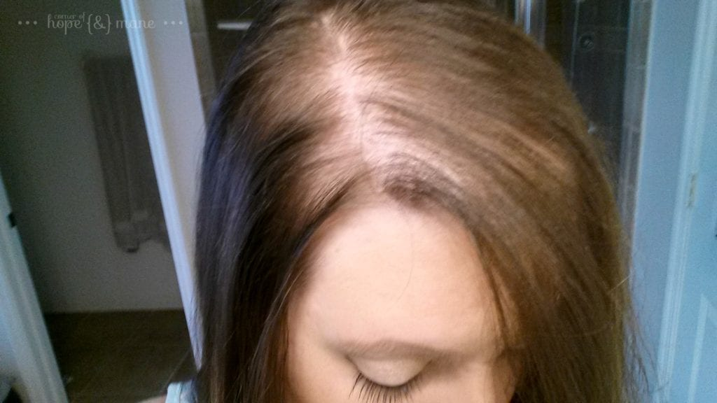 Dry Hair After Pregnancy