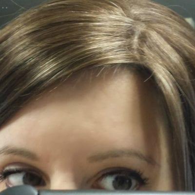 Crazy Hair Regrowth (Post-Pregnancy)
