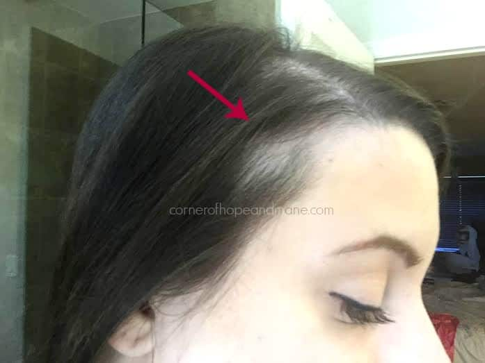 Traction Alopecia Bald Spots From Topper Clips